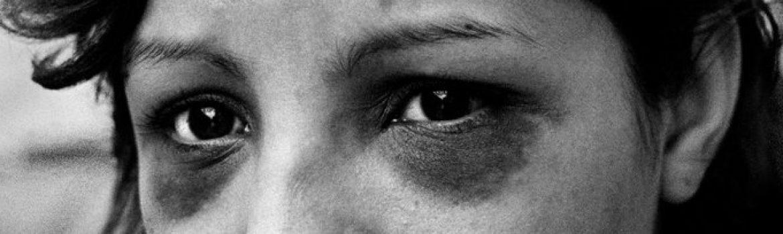 Black Eyes Don't Lie